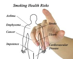 Stop Smoking Hypnosis | Health Issues | Alan Gilchrist Hypnotherapy